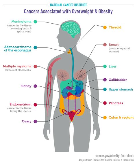 Cancers Associated with Overweight and Obesity Infographic