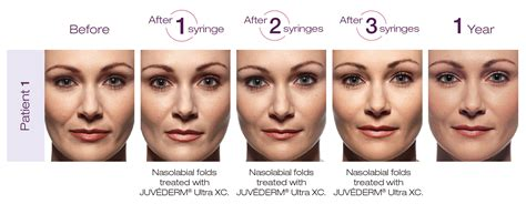 Where Can Dermal Fillers Be Used?