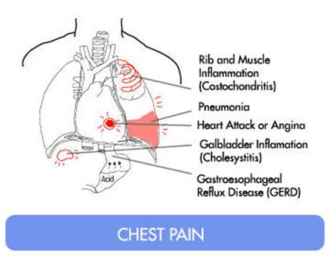Main Causes of Pain in Right Side of Chest | IYTmed