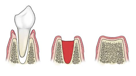 9 important facts about wisdom teeth and tooth removal