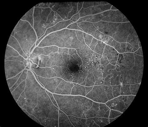 Fluorescein Angiography | Department of Ophthalmology and