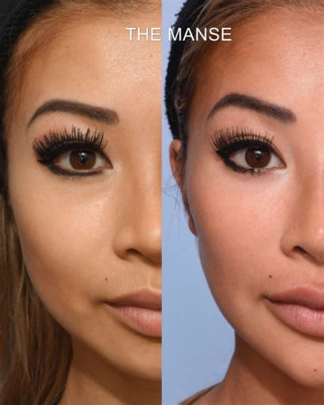 Before and After Full Face Injecting - Best Clinic Sydney