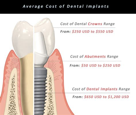 Dental Implants in Mexico - Cost Comparison Between