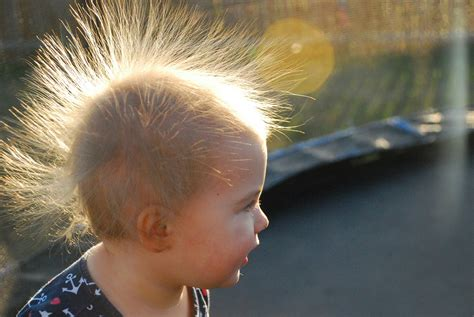Uncombable Hair Syndrome Is a Rare, Genetic Syndrome — and